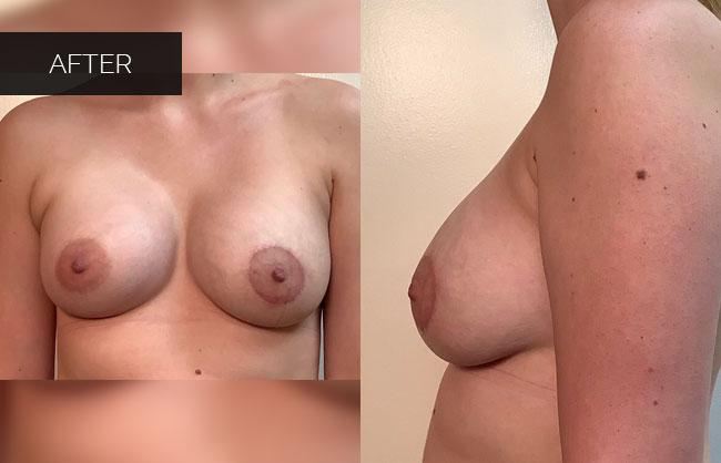breast augmentation results in Utah 6