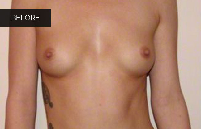breast implant before pics