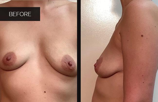 breast augmentation befor pics in Utah 6