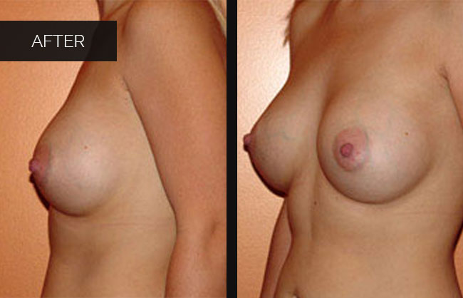 breast augmentation results in Utah 6