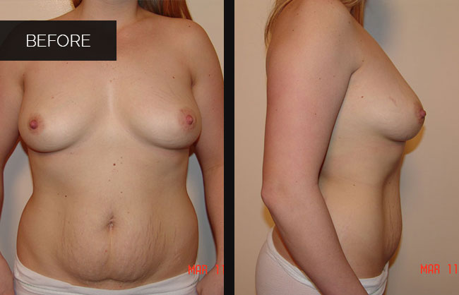 breast augmentation befor pics in Utah 6