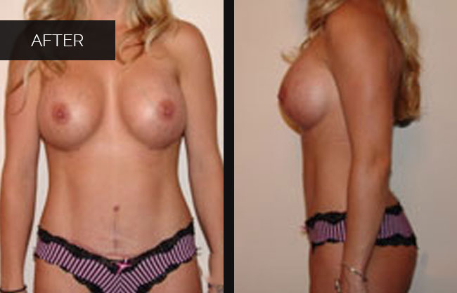 Utah's best breast augmentation surgeon